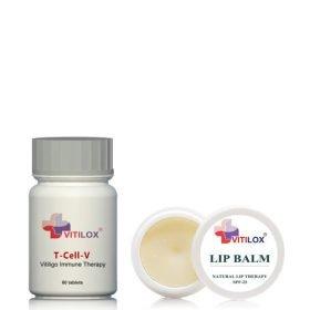 Vitilox Lip Treatment