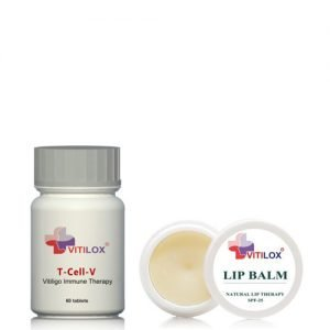 Vitilox Lip Treatment