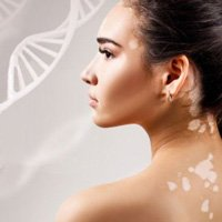 Treating Hereditary Vitiligo