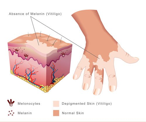 Vitiligo Treatment & Follow-up Plan