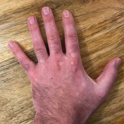 Vitiligo Hand Treatment