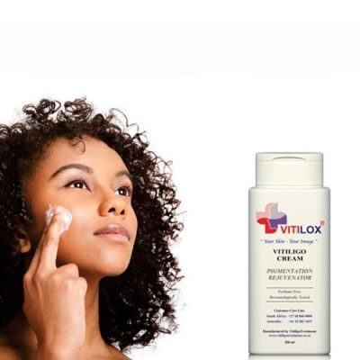 Vitiligo Vitilox Spot Treatment
