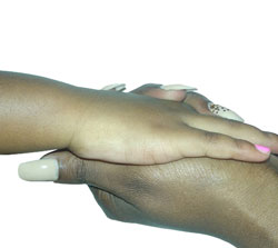 Vitiligo Successful Hand Treatment
